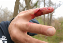 Photo of Team Radical's Justin Shows Us Why You Need to be Careful Bowhunting Unless You Want Stitches