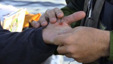 Photo of Video: The Best Method For Removing a Fishing Hook From Your Hand